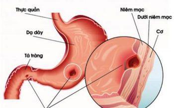 Lời khuyên hữu ích về viêm loét dạ dày nên kiêng gì?