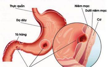 Thông tin hữu ích về viêm loét dạ dày không nên ăn gì?
