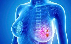 Dấu hiệu bị ung thư vú – nhận biết sớm để điều trị hiệu quả