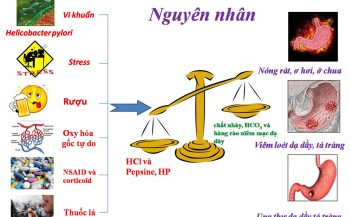 Nguyên nhân gây ra bệnh viêm loét dạ dày và cách điều trị