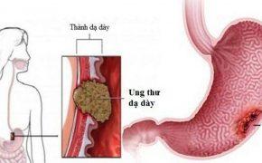 Nguyên nhân, triệu chứng và các điều trị bệnh ung thư dạ dày