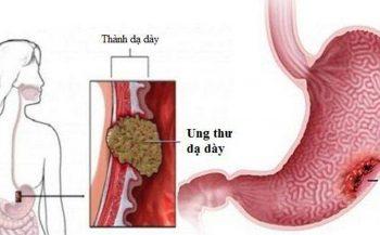 Nguyên nhân, triệu chứng và cách chẩn đoán bệnh ung thư dạ dày