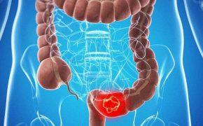 Ung thư đại tràng là gì? Nguyên nhân, triệu chứng và cách điều trị