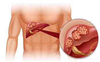 Dấu hiệu ung thư gan và các phương pháp chẩn đoán và điều trị