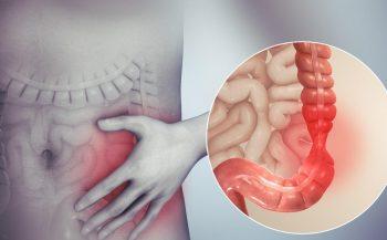 Nguyên nhân và triệu chứng ung thư đường ruột non
