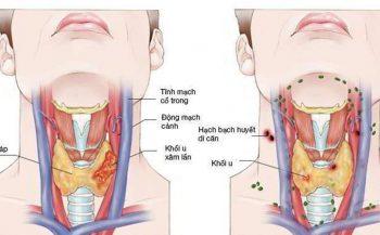 Ung thư vòm họng giai đoạn cuối và những thông tin cần biết