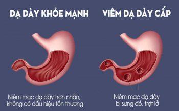 Những thông tin tổng quan về bệnh viêm loét dạ dày cấp tính