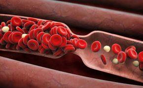 Chuyên gia giải đáp ăn gì giảm mỡ máu hiệu quả nhất