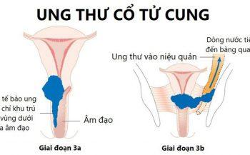 Ung thư cổ tử cung giai đoạn 3 và cách điều trị bệnh