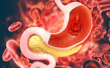 Triệu chứng của ung thư dạ dày và cách phòng ngừa bệnh hiệu quả