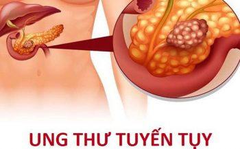 Ung thư tuyến tụy: Nguyên nhân, triệu chứng và cách điều trị