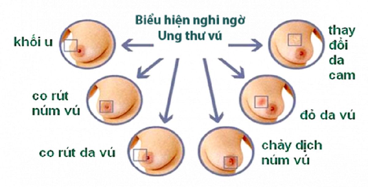 dau-hieu-nhan-biet-ung-thu-vu_1