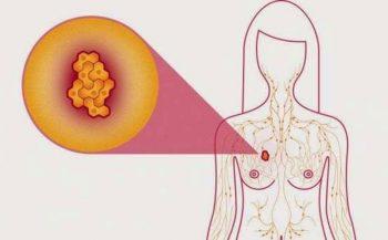 Chuyên gia chia sẻ cách nhận biết ung thư vú cho chị em
