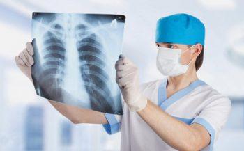 5 biện pháp điều trị ung thư phổi hiệu quả hiện nay