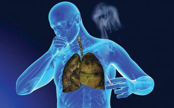 Top 7 cách phòng ngừa bệnh ung thư phổi được khuyến cáo