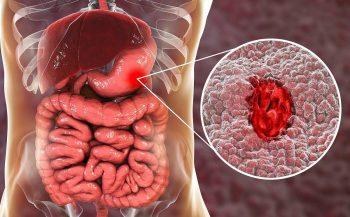 Những biểu hiện và biến chứng của viêm loét dạ dày cấp tính