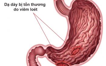 Những thông tin liên quan đến viêm loét dạ dày có vi khuẩn HP