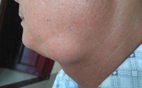 Triệu chứng ung thư vòm họng giai đoạn cuối như thế nào?