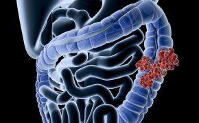 Những thông tin cơ bản về ung thư đại tràng giai đoạn 3