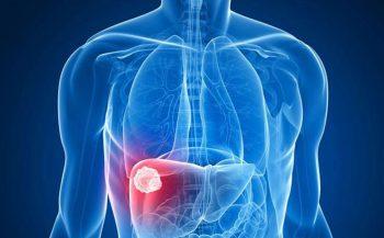 Ung thư gan có chữa được không? Phương pháp điều trị ra sao?