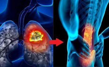 Ung thư phổi di căn xương là gì? Mức độ nguy hiểm như thế nào?