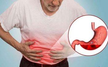 Chuyên gia giải đáp: Viêm loét dạ dày có phải mổ không?