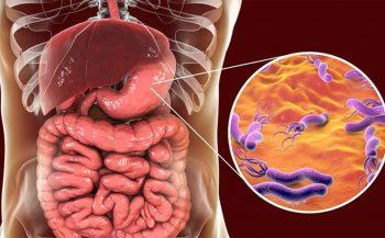 Viêm loét dạ dày HP dương tính là gì? Có nguy hiểm không?